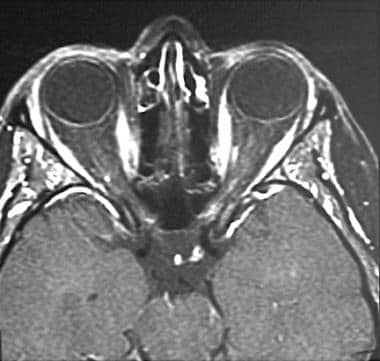 A 35-year-old woman with acute onset of left-eye p