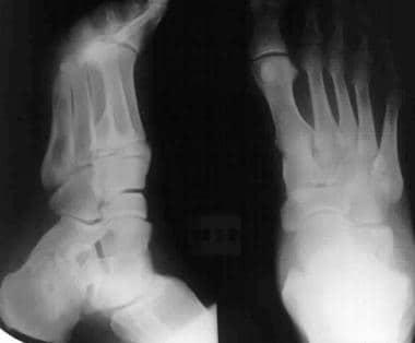 Calcaneus, fractures. Rowe type IV calcaneal fract