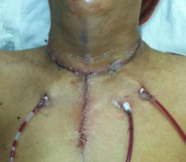 Goiter Surgery Recovery - Thyroid Disorders - MedHelp