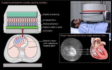 Planar imaging. The gamma camera detects the gamma