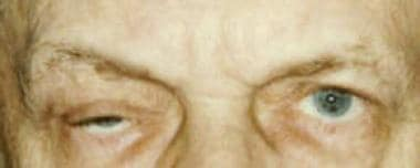 Patient with myasthenia gravis. Right lid is more
