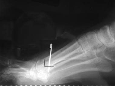Distal chevron metatarsal osteotomy fixed with a K