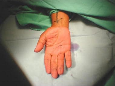 Incision marked out in distal palmar crease for su