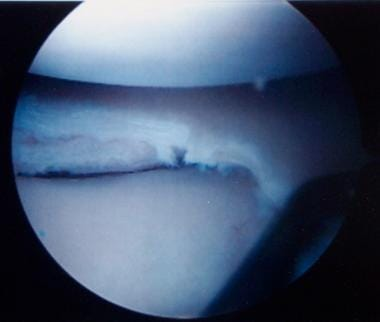 Arthroscopic photograph following saucerization of