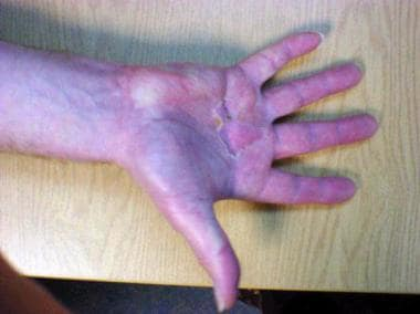 Reflex sympathetic dystrophy following surgery for