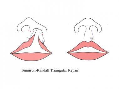 Tennison-Randall repair. The medial lip element is