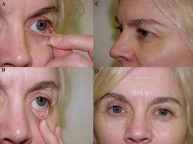 A: The lower eyelid is evaluated for the presence