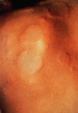 Local urticaria on a patient with latex allergy wh
