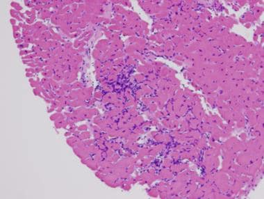 H and E, low power, showing numerous lymphocytes w