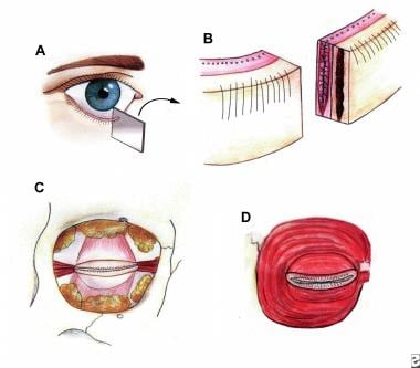 A: The lower eyelid has been cross-sectioned in or