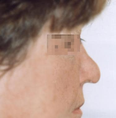 The polly beak nasal deformity with loss of the su