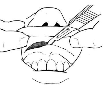 Gingivolabial incision.