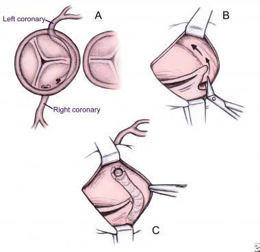 Operative repair of anomalous left coronary artery