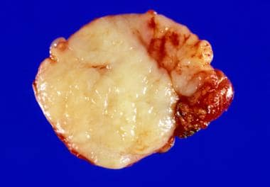 A gross image of a node following excision. The cu