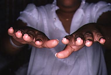 Hyperconvex nails in Turner syndrome. Note U-shape