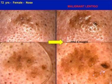 In situ melanoma, malignant lentigo type, detected