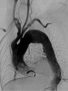 Baseline aortogram showing arch anatomy.