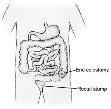 Illustration of segment of distal colon that would