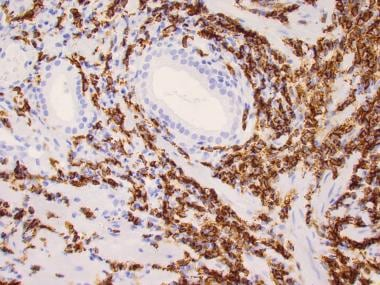 CD20 immunostain of marginal-zone lymphoma of the