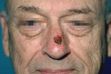 Case 1. Preoperative nasal defect.