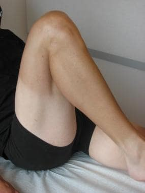 Flexing the knee in active mobilization.