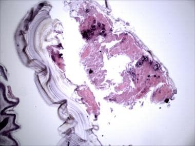 Laminated cyst wall of echinococcus on H&E-stained