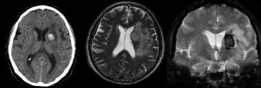 Noncontrast CT of the brain (left) demonstrates an