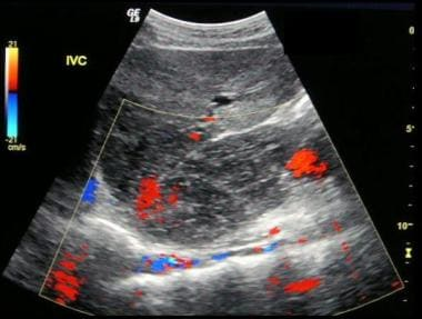 Budd-Chiari syndrome: The third of six ultrasound