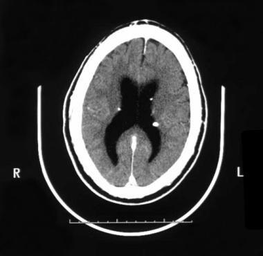 In tuberous sclerosis, the subependymal hamartomas