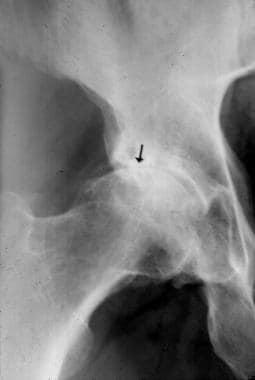 Anteroposterior plain film of the pelvis in a pati