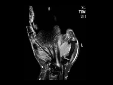 STIR sequence coronal MRI of the thumb showing a m