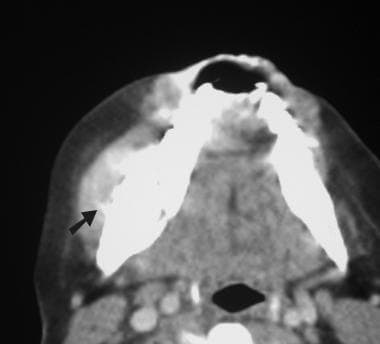 Axial computed tomography (CT) scan obtained with