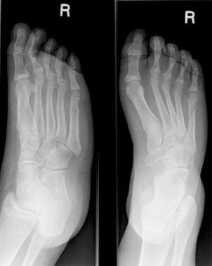 Fractured metatarsals. A fracture of the fifth met