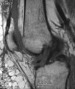 Partial-volume inclusion of the lateral femoral co
