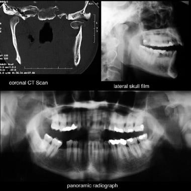 Radiographic views of subcondylar fractures.