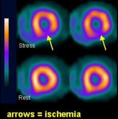 SPECT imaging performed after stress. The upper ro