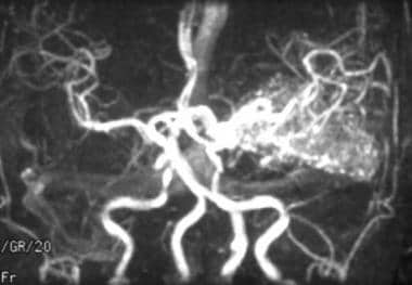 Magnetic resonance angiography showing a left medi