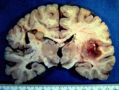 Tuberculoma is the round gray mass in the left cor