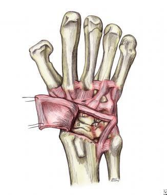 Reflected dorsal wrist capsulotomy preserving dors