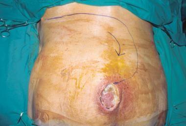 Grade IV sacral pressure ulcer in an elderly patie