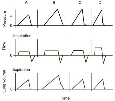 Wave forms of a volume-targeted ventilator: Pressu
