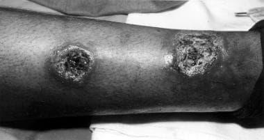 Cutaneous leishmaniasis with sporotrichotic spread