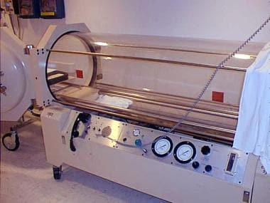 Monoplace hyperbaric chamber. Courtesy JG Benitez,
