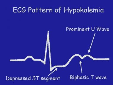 A graphical representation of the electrocardiogra