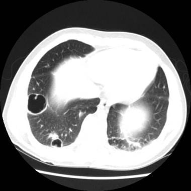 Follow-up CT scan of the thorax (lung windows) of