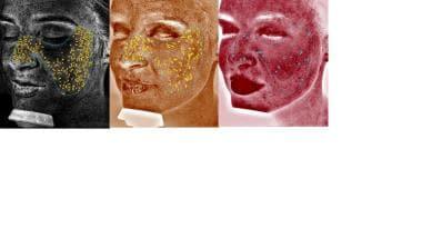 Representative Facial Complexion Analysis from Can