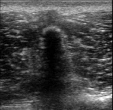 Transverse ultrasound image of the lumbar spine de