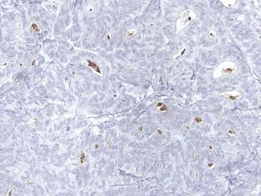 Endometrioid adenocarcinoma resembling granulosa c