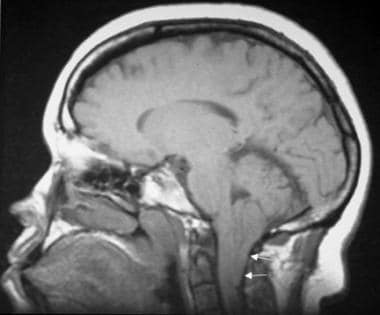MRI of a 26-year-old woman with unsteadiness and v