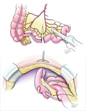 Cystoprostatectomy.